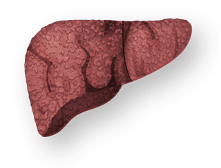 Liver with Cirrhosis
